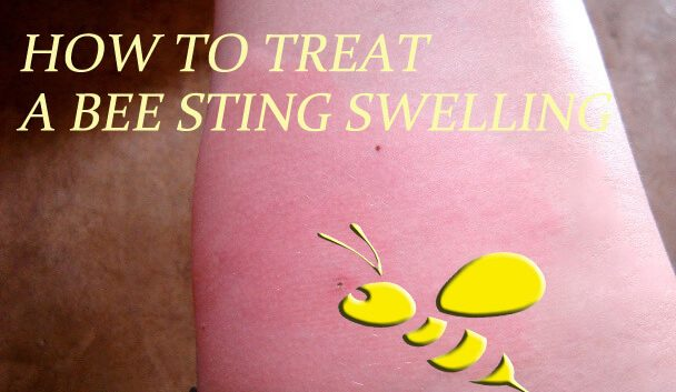 How to Treat a Bee Sting Swelling Fast